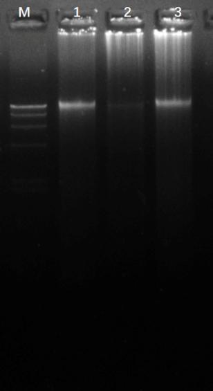 全血基因组DNA提取试剂盒