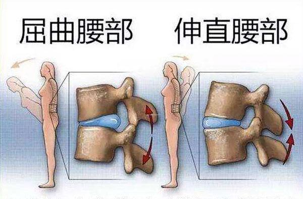 腰椎间盘突出怎么发生的