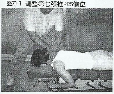 颈7-PRS偏位
