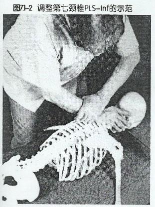 第7颈椎PLS-Lnf