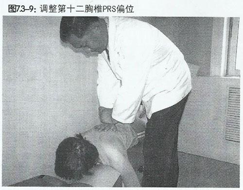 胸椎PRS