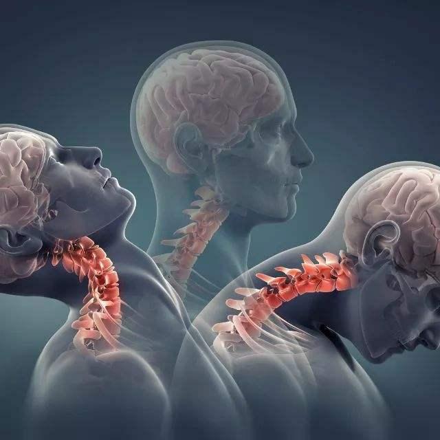 解决颈椎病头晕头痛