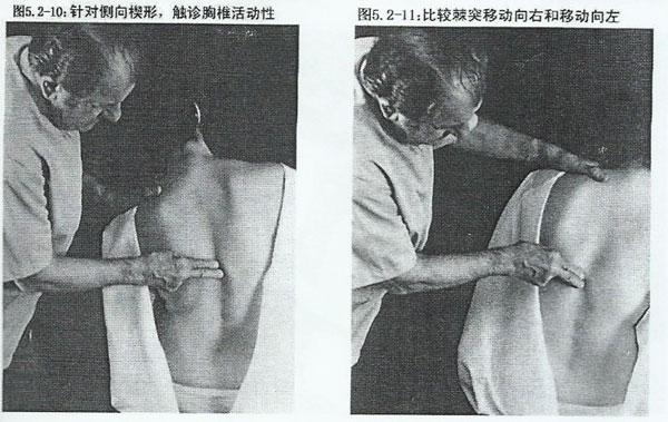 正骨整脊胸椎摸骨