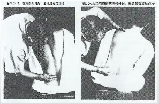 侧向楔形触诊手位置