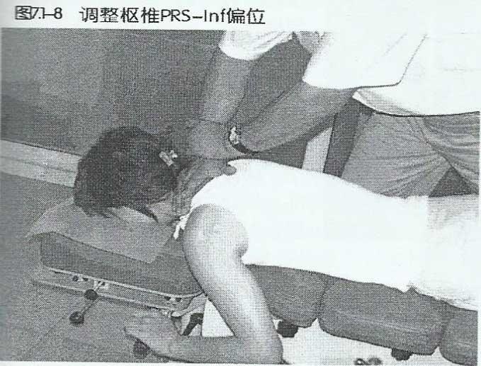 美式整脊针对枢椎 PRS-Inf偏位