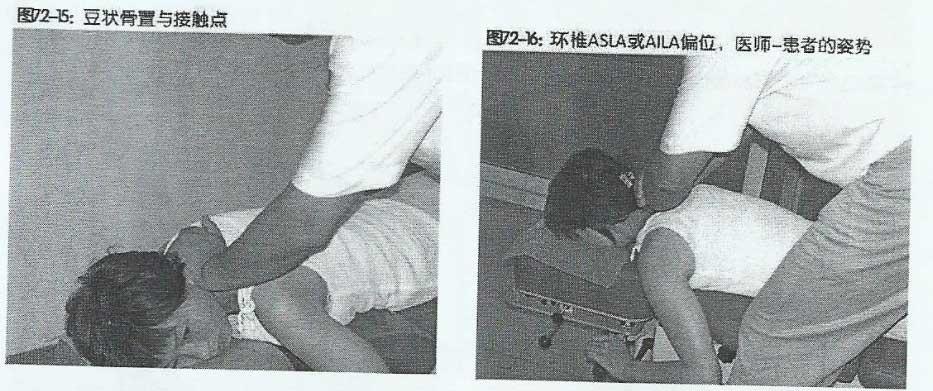 调整寰椎 ASLA 或 AILA手法