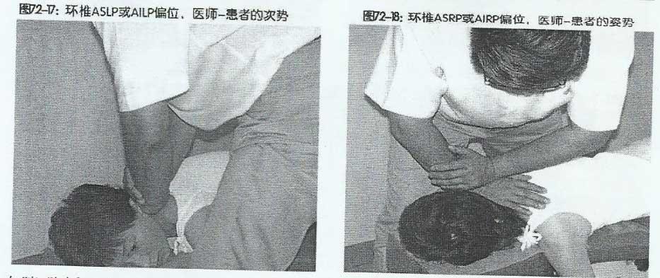 矫正寰椎 ASLP 、AILP、ASRP、AIRP 偏位手法
