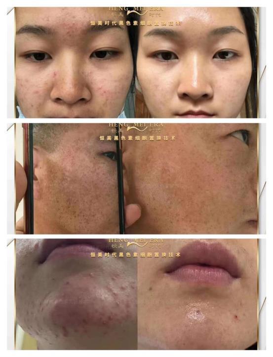 恒美时代美肤大学祛斑问题肌肤代理有什么优势?在哪里学习?合伙人贾总