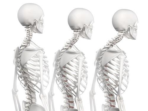 脊椎亚健康